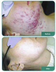 A-Tea-Tree-Oil-Acne-Treatment-Example