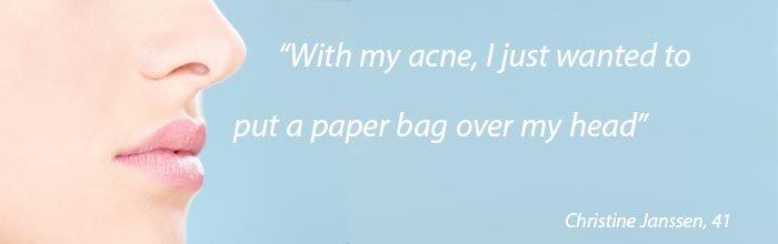 adult-acne-featured