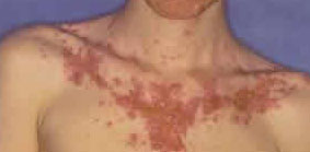 Acne fulminans on chest