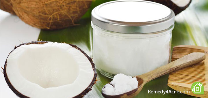 coconut-oil-for-acne-scars