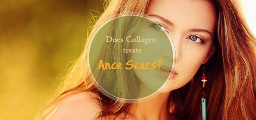 collagen-treats-acne-scars