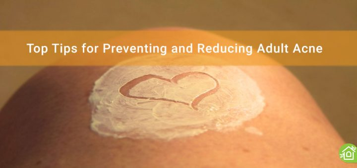Top-Tips-for-Preventing-and-Reducing-Adult-Acne