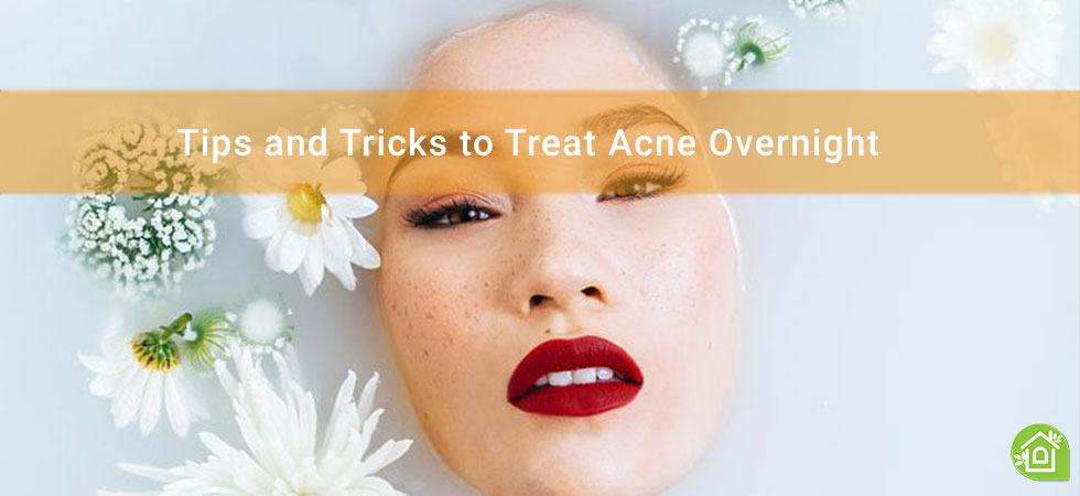 Tips-and-Tricks-to-Treat-Acne-Overnight