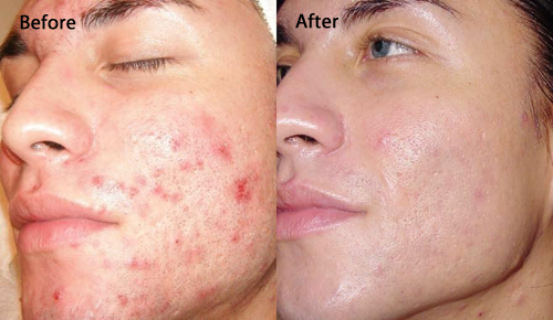 Dermabrasion - before and after
